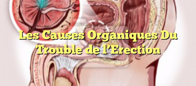 Les Causes Organiques Du Trouble de l'Erection